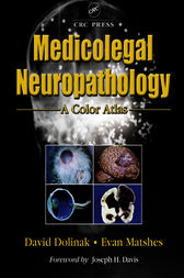 Medicolegal Neuropathology by David Dolinak