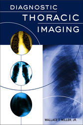 Diagnostic Thoracic Imaging by Wallace Miller