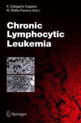 Chronic Lymphocytic Leukemia by Riccardo Dalla Favera