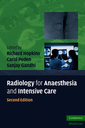Radiology for Anaesthesia and Intensive Care by Richard Hopkins