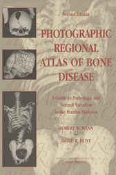 Photographic Regional Atlas of Bone Disease by Robert W. Mann