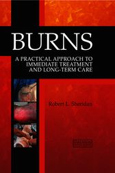 Burns by Robert L. Sheridan