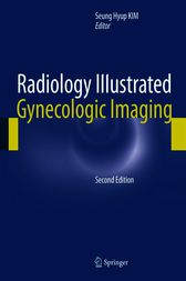 Radiology Illustrated: Gynecologic Imaging