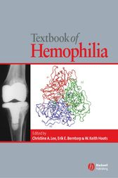 Textbook of Hemophilia by null