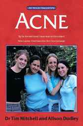 Acne - The 'At Your Fingertips' Guide by Tim Mitchell