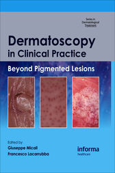 Dermatoscopy in Clinical Practice by Giuseppe Micali