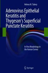 Adenovirus Epithelial Keratitis and Thygeson's Superficial Punctate Keratitis by Helena M. Tabery