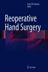 Reoperative Hand Surgery by Scott F.M. Duncan