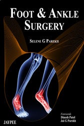 Foot and Ankle Surgery by Selene G. Parekh