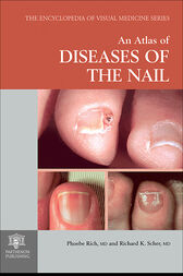 An Atlas of Diseases of the Nail