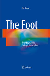 The Foot by Kaj Klaue