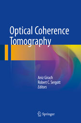 Optical Coherence Tomography by Aniz Girach