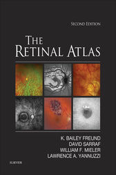 The Retinal Atlas E-Book by K. Bailey Freund