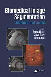 Biomedical Image Segmentation by Ayman El-Baz